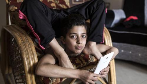 巴勒斯坦少年凭软骨功打破吉尼斯世界纪录 被称